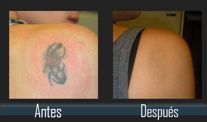 eliminacion de tatuajes antes y despues evolution tattoo rubi barcelona