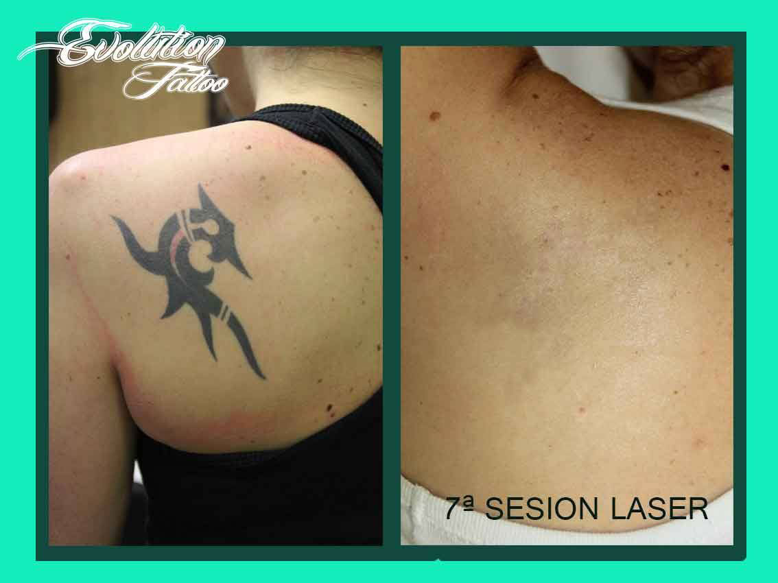 borrar tatuajes evolution tattooo rubi barcelona
