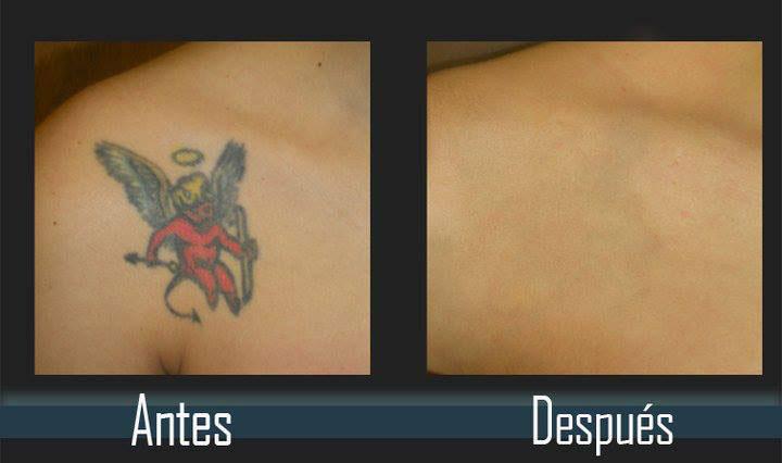 eliminacion de tatuajes en el hombro evolution tattoo rubi barcelona