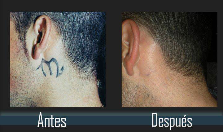 eliminacion de tatuajes en el cuello antes y despues evolution tattoo rubi barcelona