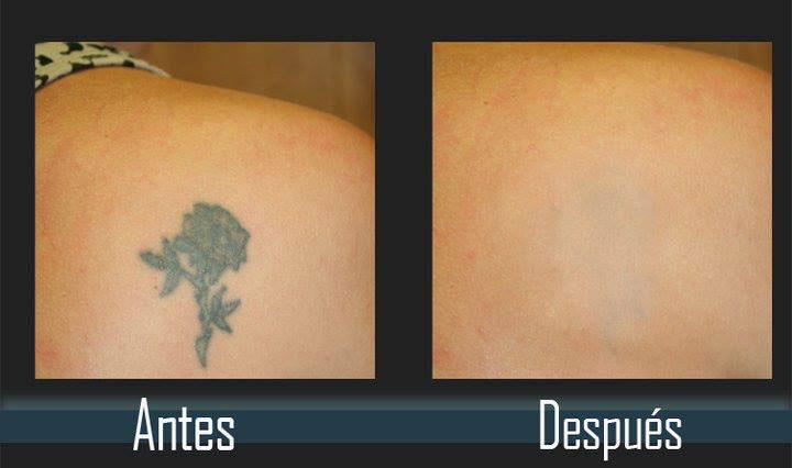 quitar tatuajes laser evolution tattoo rubi barcelona